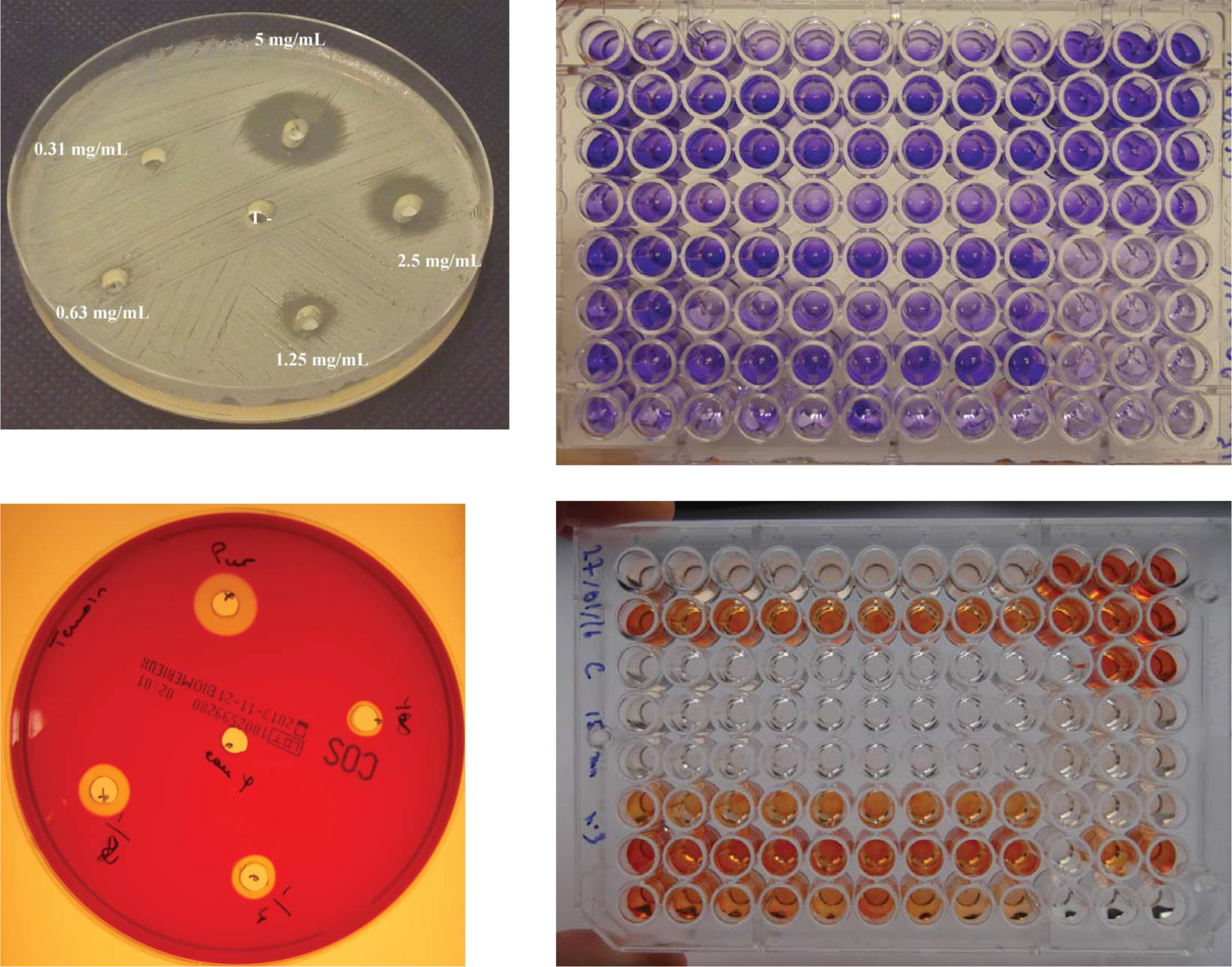 Variables and their measures. Upper left - Staphylococcus aureus inhibited by amlodipine. A 5-mg capsule was opened and the content diluted in 1 mL of isotonic water; 40 µL of solution per pits. Serial ½ dilution and negative control (isotonic water). Lower left - Hemolytic properties of crushed amlodipine. Serial ½ dilution and negative control (isotonic water). Pure: diameter of hemolysis 11 mm around pits containing amlodipine solution (40 µL). Upper right - Crystal violet coloring of Streptococcus salivarius biofilm grown in microtiter plates. A darker purple color corresponds to a thicker biofilm in the pits. Lower right - XTT orange coloring of Candida albicans biofilm grown in microtiter plates. A darker orange color corresponds to a thicker biofilm in the pits.