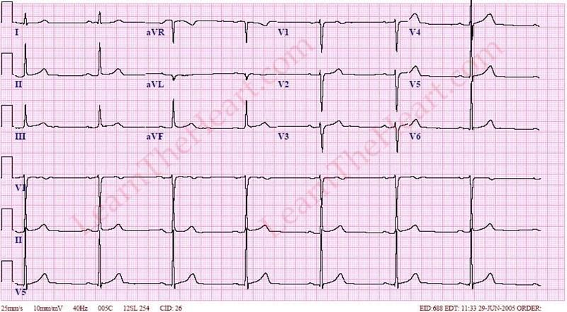 Sinus Bradycardia ECG ...