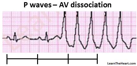 VT-AV-dissociation