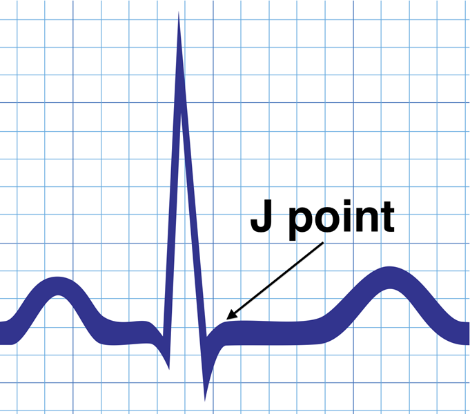 J Point ECG Review LearntheHeartcom - Elevation point