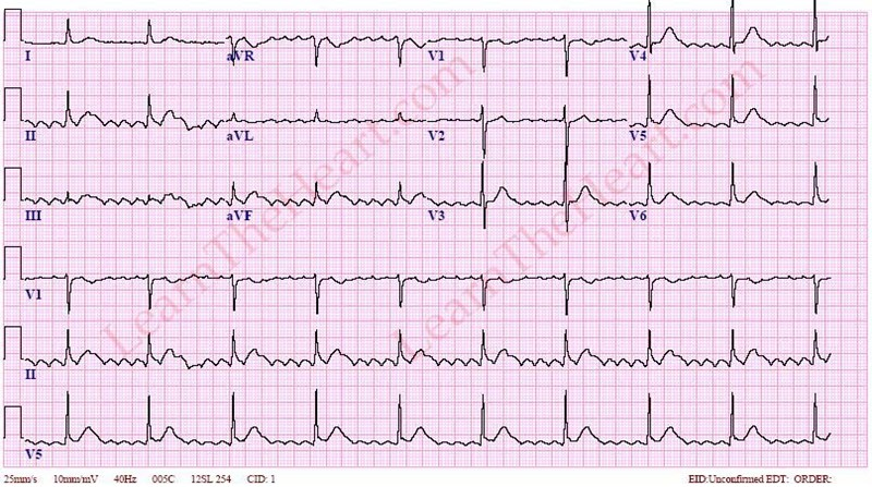 AtrialFlutter5to1