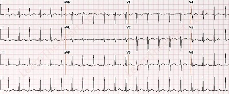 AtrialTachycardia3