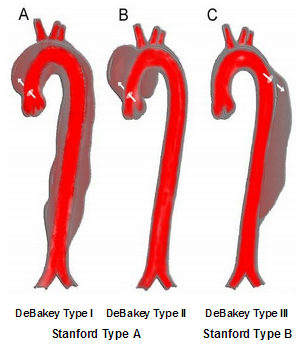 AorticDissectionClassification