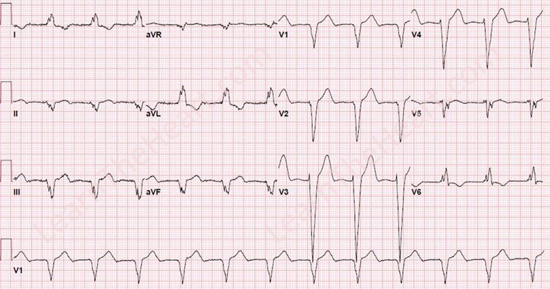 ChapmansSign-LBBB-WM