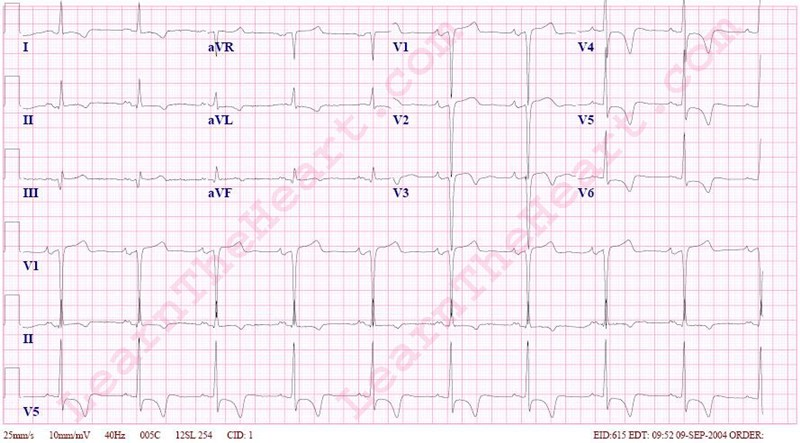 Left Ventricular Hypertrophy (LVH) with Repolarization ...