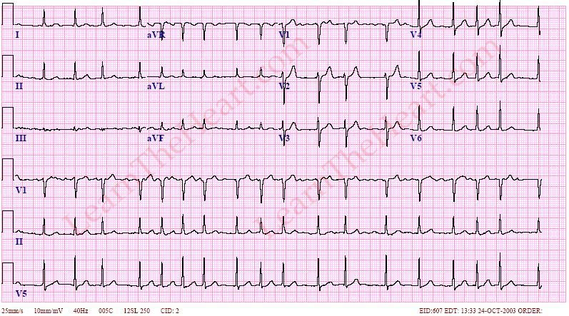 AtrialFibrillation-RVR-ECG