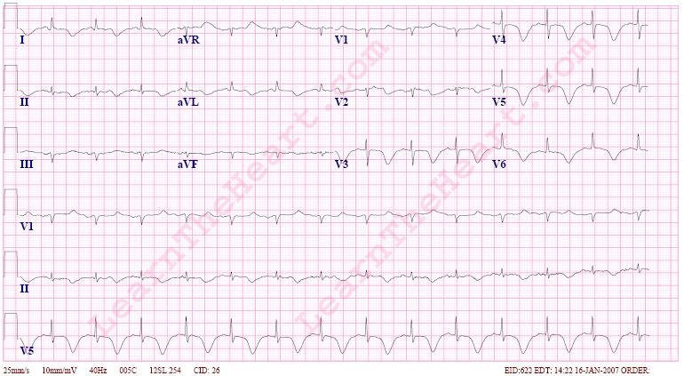 Prolonged-QT-Interval-ECG-2