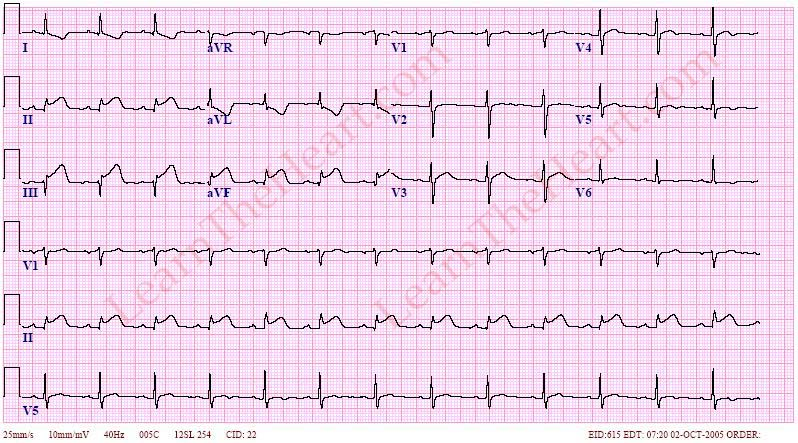 Inferior-STEMI-4