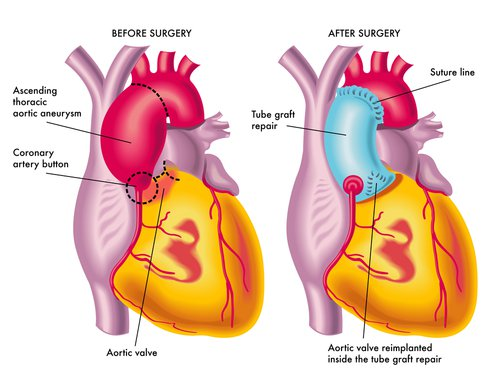 ascending aortic aneurysm - definition, diagnosis, treatment, Human Body