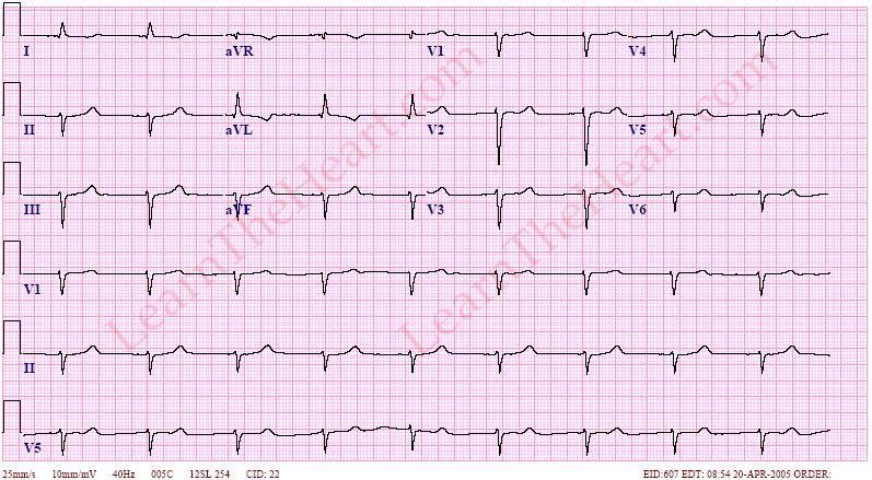 Junctional Bradycardia Example
