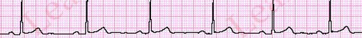 SinusBradycardiaECGCriteria