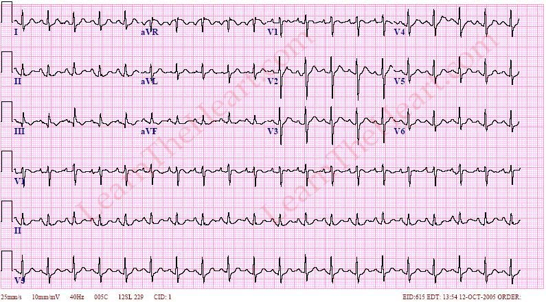 PulmonaryEmbolismECG3