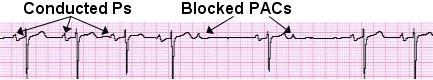 ECGQuiz-BlockedPACs