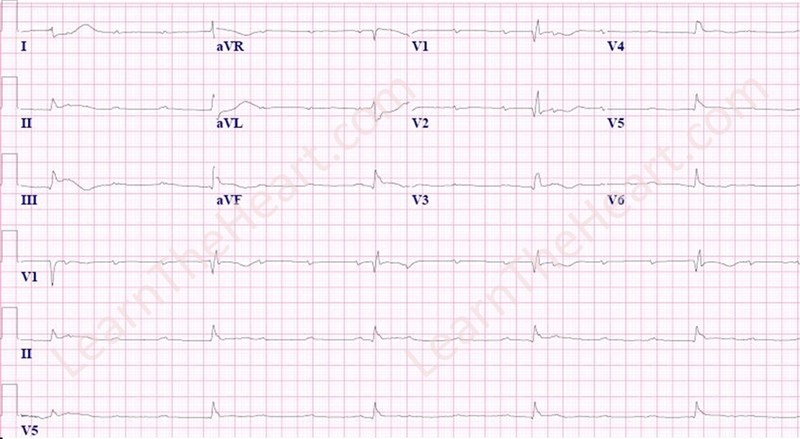 Inferior-STEMI-3rdDegreeAVB-WM