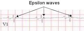 Epsilon_Wave