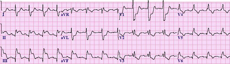 InferiorSTEMI-RBBB-Blog