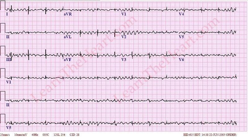 VentricularFibrillation-BiVAD