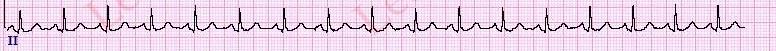TachycardiaHR-FullStrip1