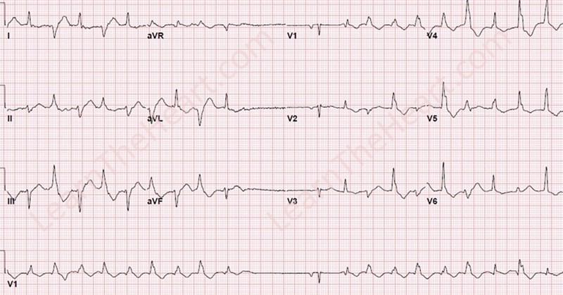 Bidirectional Ventricular Tachycardia Ecg Example Learntheheart Com