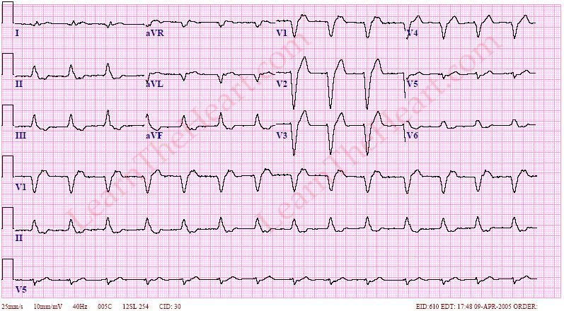 AcceleratedIdioventricular2