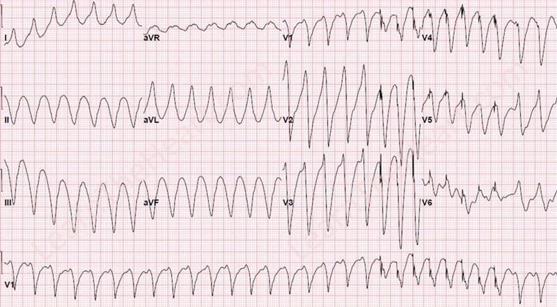 VT-ATP-ECG