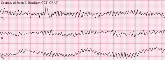 VentricularFibrillationECGCriteria