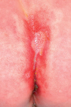 3 year old with vagina rash