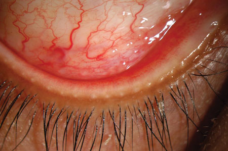 Inferior fornix of the right eye showing conjunctival injection and follicles.