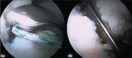 The automated capsular closure device (InJector II; Pivot Medical, Sunnyvale, Calif.) grasps the acetabular side first (a) and then grasps the capsular side next (b).