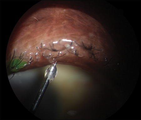 Intraductal injection of a steroid-antibiotic combination into the meibomian gland duct associated with an early chalazion.
