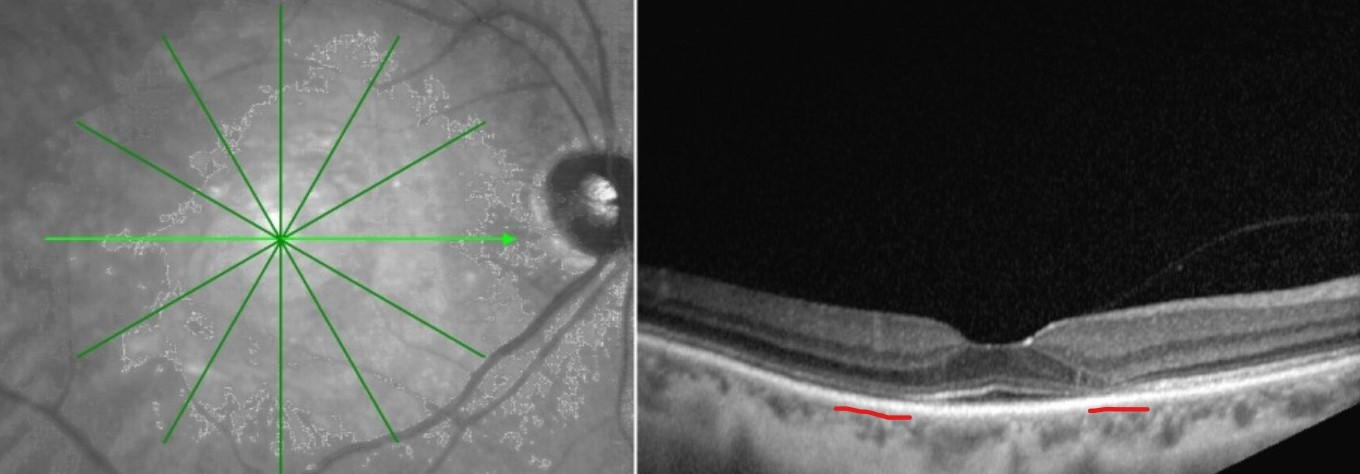 Note the areas of thinning or absent photoreceptors (above the red underlines) on SD-OCT in this patient with retinal toxicity resulting from hydroxychloroquine use. Source: Doug Rett, OD, FAAO