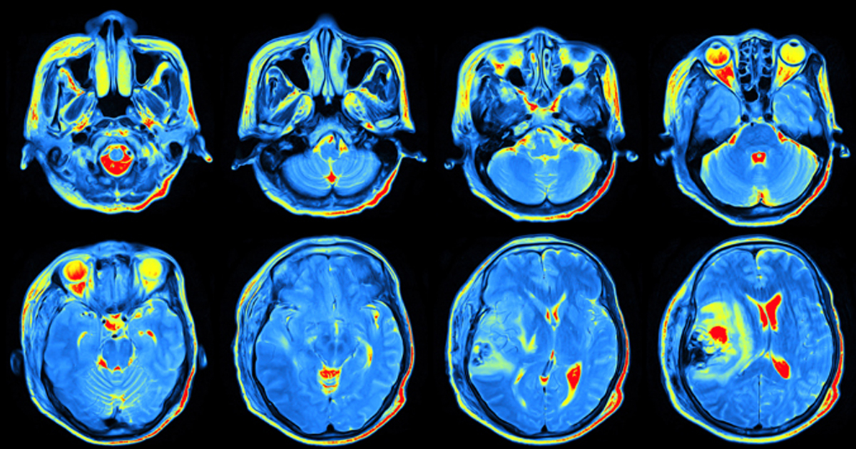 multiple images of a brain scan
